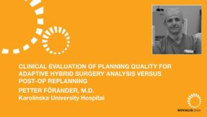 Clinical Evaluation of Planning Quality for AHS Analysis