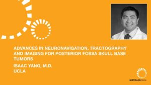 Advances in Neuronavigation, Tractography, and Imaging for Posterior Fossa Skull Base Tumors