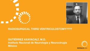 Radiosurgical Third Ventriculostomy????