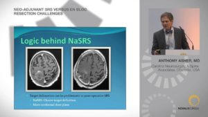 Neo-Adjuvant SRS Versus En Bloc Resection Challenges
