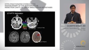 Hypo-Fractionated SRS of Postoperative Resection Cavity of Large Single Brain Metastases