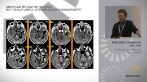 Advanced MR and PET Imaging: Is it Really Useful in Brain Tumor Radiosurgery?