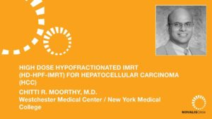 High Dose Hypofractionated IMRT (HD-HPF-IMRT) for Hepatocellular Carcinoma (HCC)