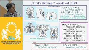 novalis-stereotactic-rt-for-spinal-metastases