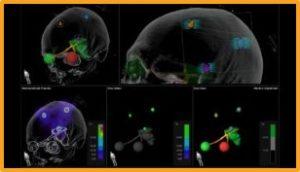 Novalis Circle Technical Webinar: Elements Multiple Brain Mets SRS