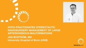 Hypo-Fractionated Stereotactic Radiosurgery Management of Large Arteriovenous Malformations