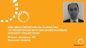 AVM Nidus Definition via Planar DSA Co-Registration with MRI-based Maximum Intensity Projections